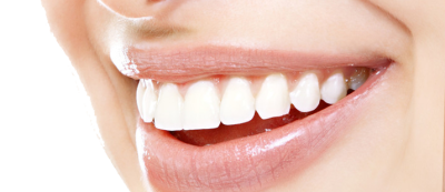 White Teeth File