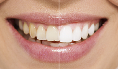 Teeth Whitening before and Af