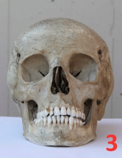 High definition photography of the same skull as figure 1: the ...