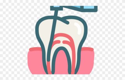 Teeth Clipart Root Canal - Root Canal Treatment Icon - Png ...