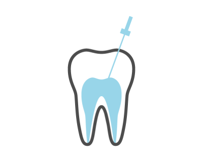 Root Canal Therapy | Curtin Dental