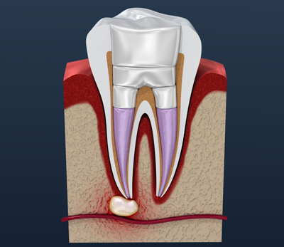 Root Canal Treatment — Johnsonville Family Dentist