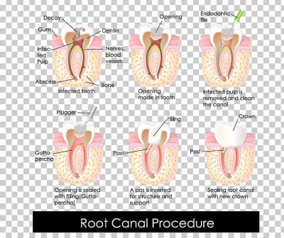 Endodontic Therapy Root Canal Dentistry Crown PNG, Clipart, Crown ...