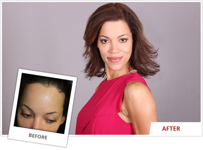 High Hairline Lowering/extension Surgery in Beverly Hills