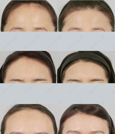 Is Hairline Lowering Surgery right for me? - IDHOSPITAL