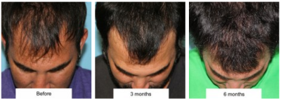 Hairline Lowering vs. Hair Transplantation — Plastic Surgeon ...