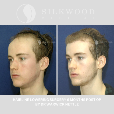 Hairline lowering surgery otherwise known as forehead reduction ...