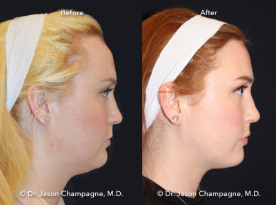 Hairline Lowering Gallery | Beverly Hills Plastic Surgeon - Dr ...