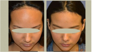 Hairline Lowering Surgery Procedure Description | by Zamdaman | Medium