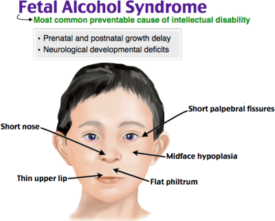 Fetal Alcohol Syndrome | Fetal Alcohol S #1656559 - PNG Images - PNGio